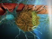 Dementia Ultrasound Breakthrough
